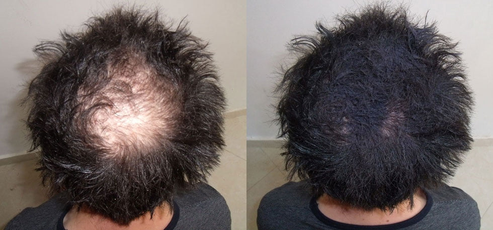 Natural Ways To Regrow Thinning Hair