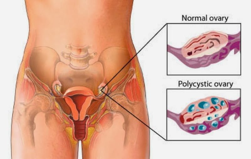 Bloating, fullness or heaviness in abdomen are symptoms of ovarian cysts