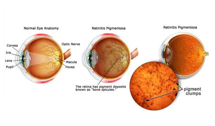 celebrities with retinitis pigmentosa