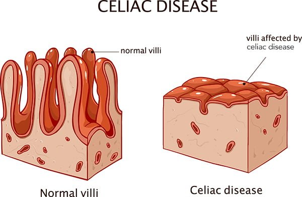celiac disease symptoms in adults