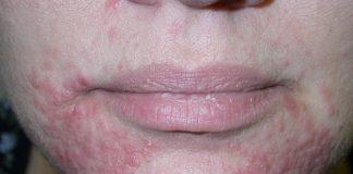 perioral dermatitis natural treatment
