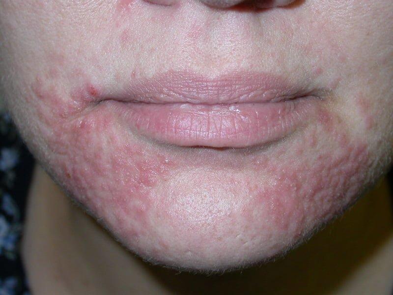 girl-peri-oral-dermatitis-sauna-nude-commercial