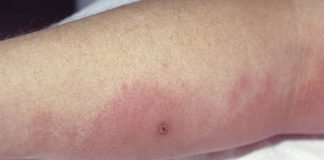 cellulitis symptoms Archives - Home remedies and natural