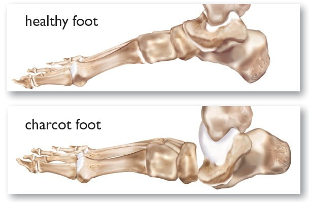 Charcot's joint