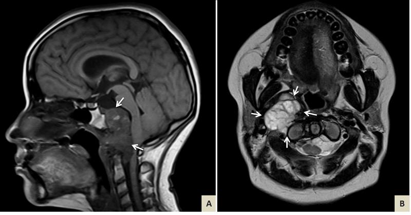 chordoma tumor