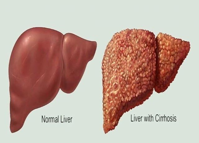 Natural Home Remedies For Liver Cancer