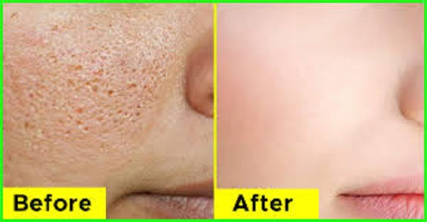 clogged pores treatment at home