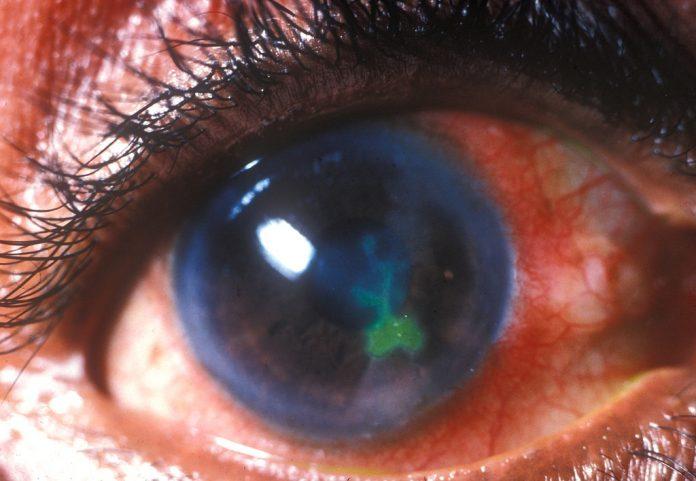 corneal ulcer