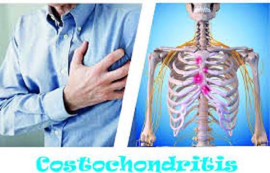 costochondritis diagnosis