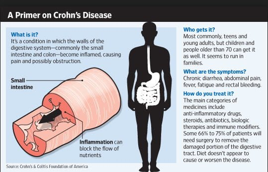 crohns disease symptoms causes
