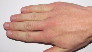 Natural cures for Raynaud's disease
