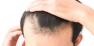 Natural cures for hair loss