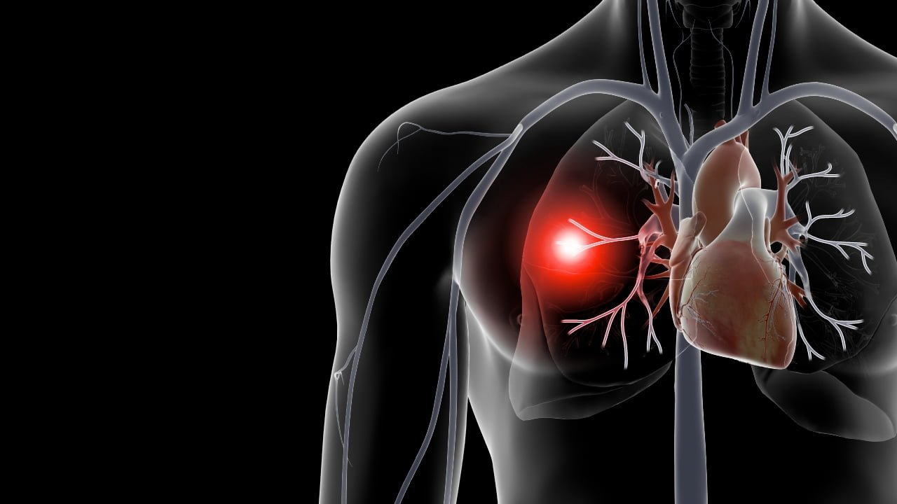 Natural cures for pulmonary embolism