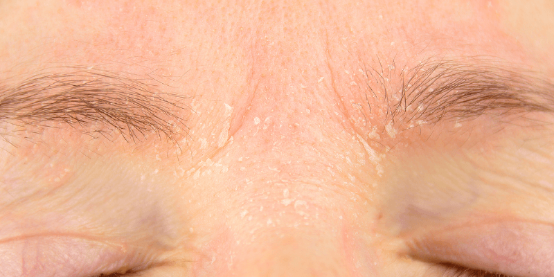 Natural cures for seborrheic dermatitis