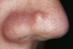 Natural cures for skin lesions