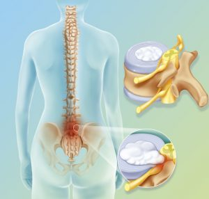 Natural cures for slipped disc