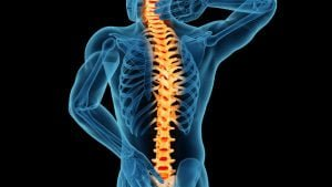 Natural cures for spinal stenosis