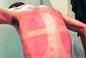 Natural cures for sunburn