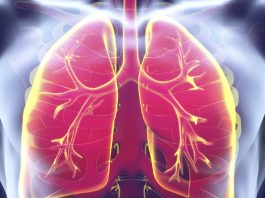 Natural cures for tuberculosis