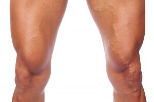 Natural cures for varicose veins