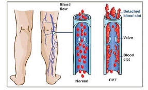 deep vein thrombosis icd 10