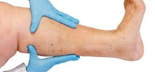 deep vein thrombosis prevention