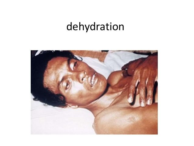 Natural cures for dehydration
