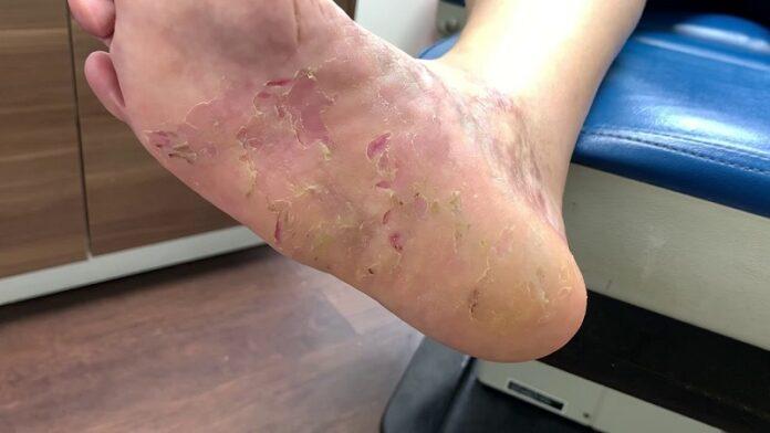 dermatillomania thumbs