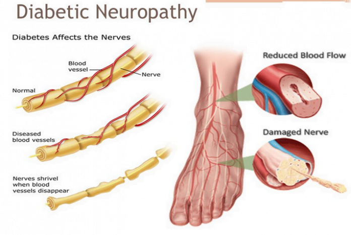 diabetic neuropathy wiki