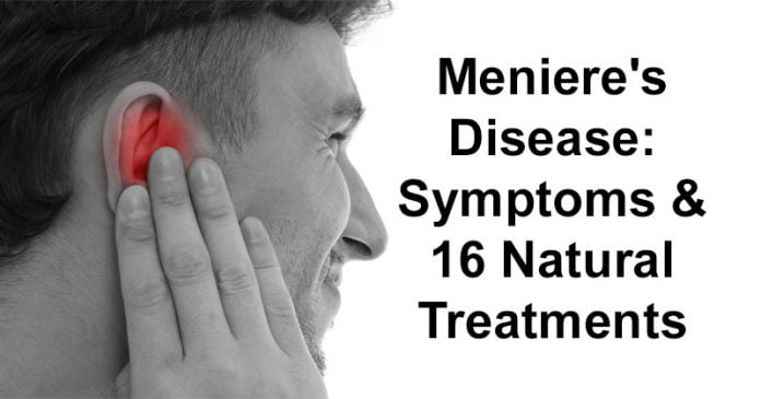 does meniere's disease go away
