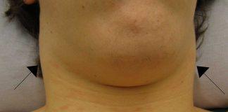 enlarged lymph nodes natural treatment