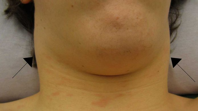 enlarged lymph nodes natural treatment