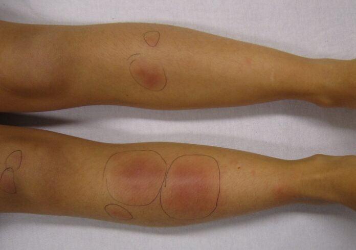 erythema nodosum foods to avoid