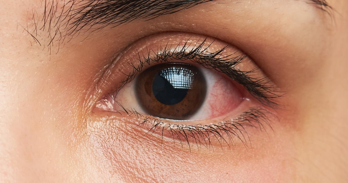 Natural Remedy For Cat Eye Discharge