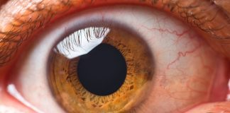 Natural cures for eye floaters
