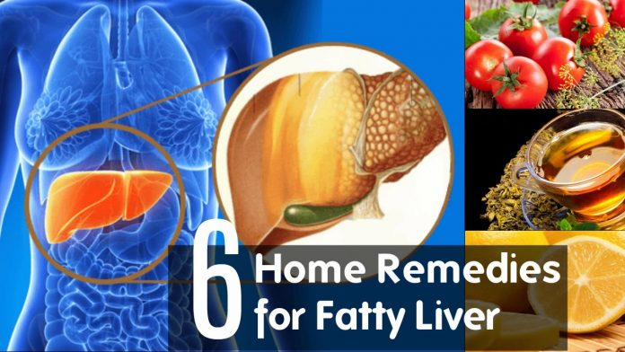 fatty liver natural treatment home remedies
