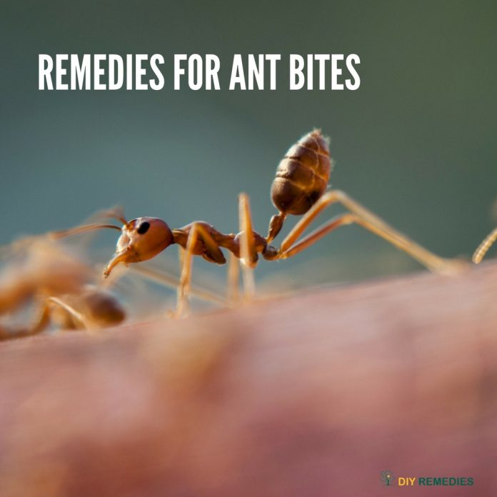 fire ant bite home remedy treatment