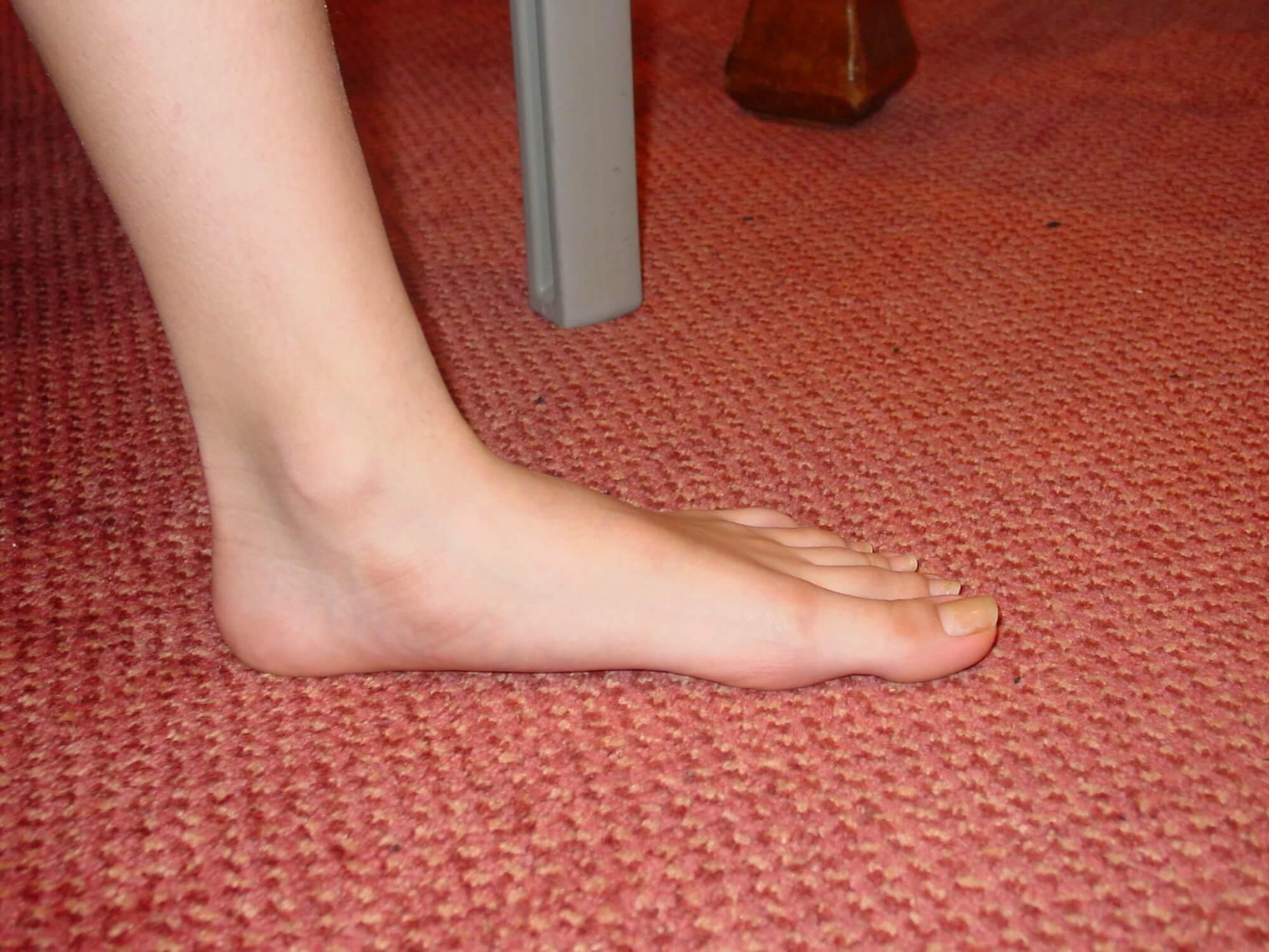 Болезнь ногтей панариций фото