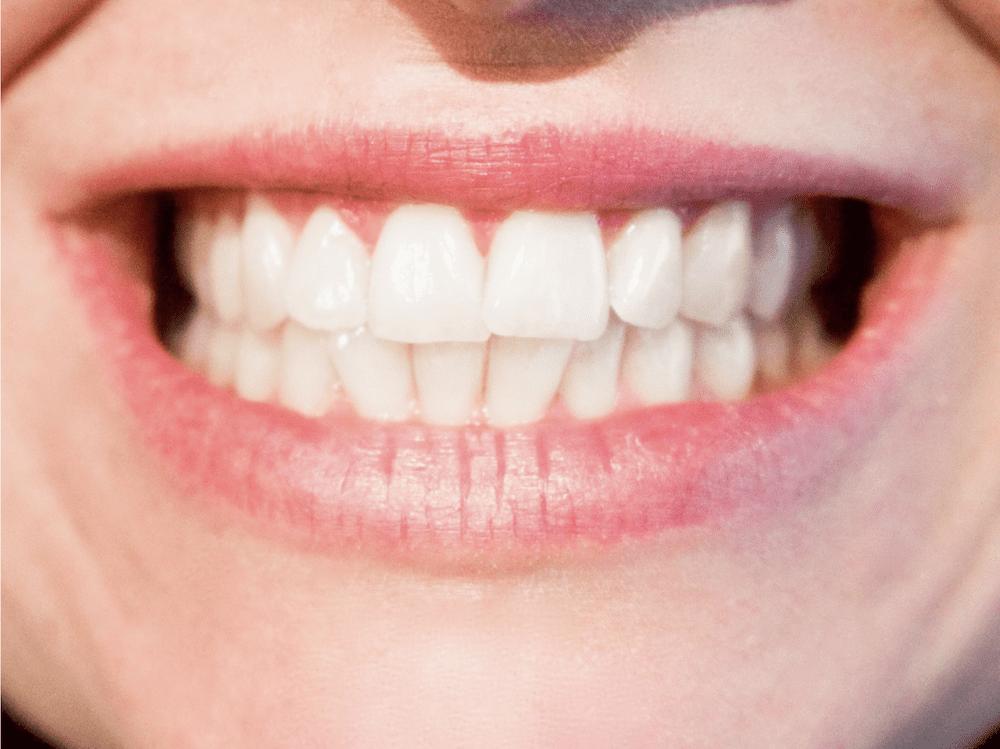 fluoride varnish for sensitive teeth