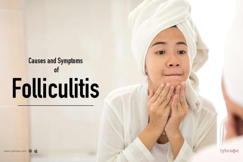 folliculitis causes symptoms