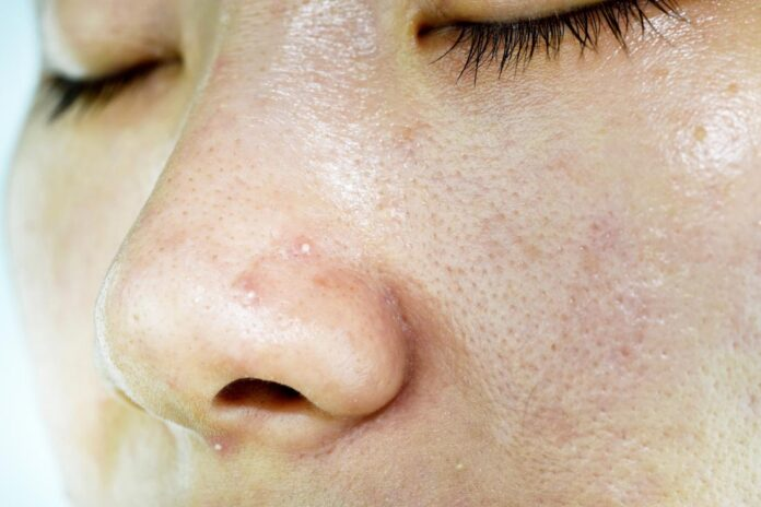 how to increase sebum production