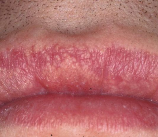 Natural treatments for Fordyce spots