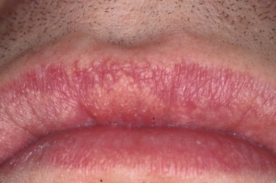Natural Home Remedies For Oral Herpes