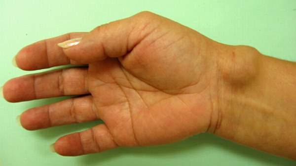 Home Remedy Ganglion Cyst