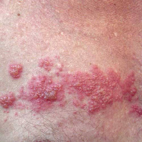 genital herpes treatment