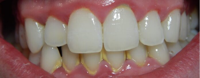 gingivitis pictures