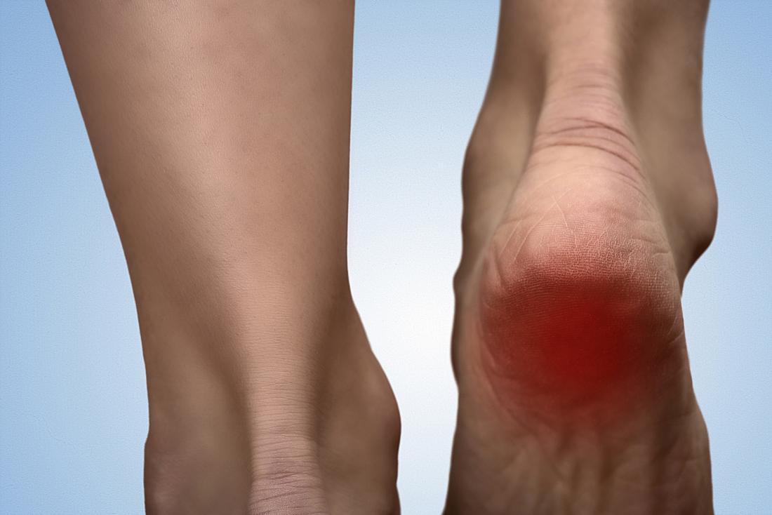 Natural cures for heel spurs