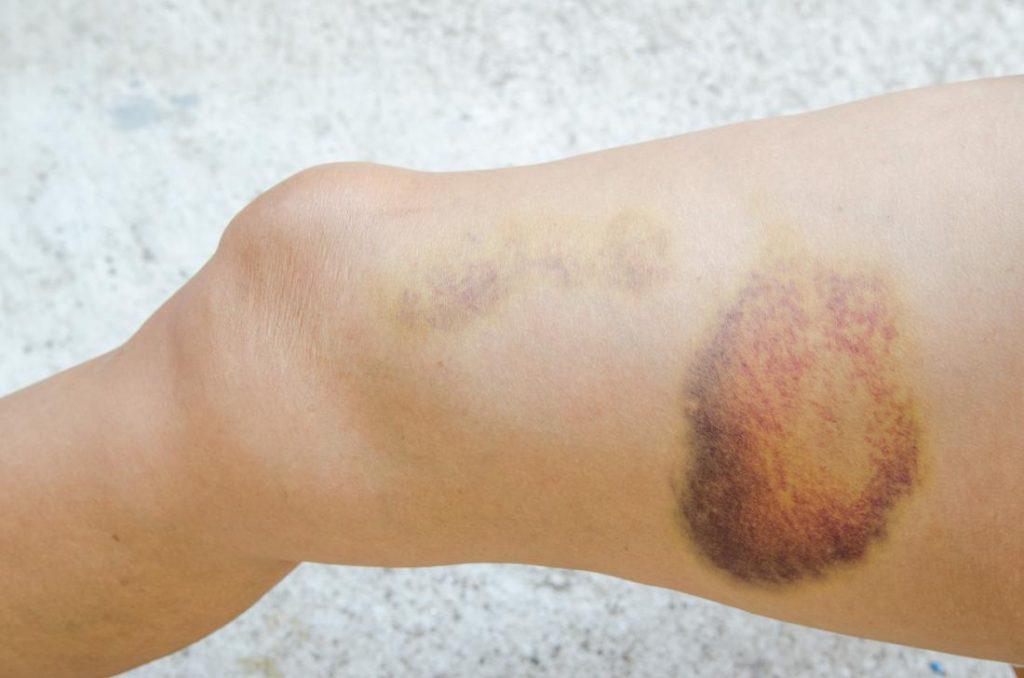 hematoma bruise