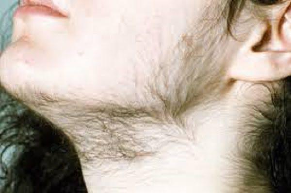 hirsutism treatment success