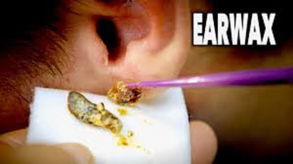 how much is too much earwax